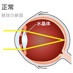 正常な眼球