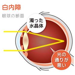 白内障の眼球