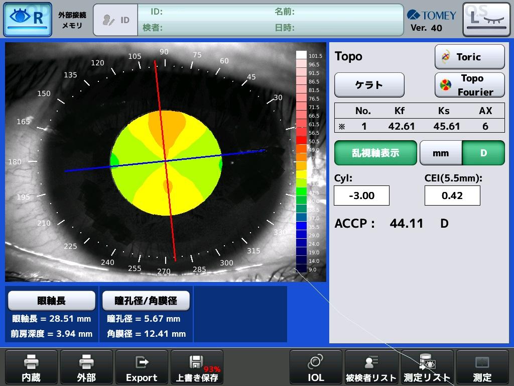 角膜トポグラフィー表示